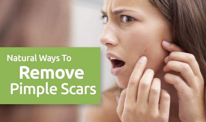 pimple scar